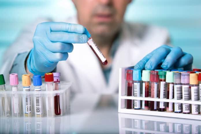 M Pharma & Chemistry Jobs at Cipla | Formulation Analyst Post